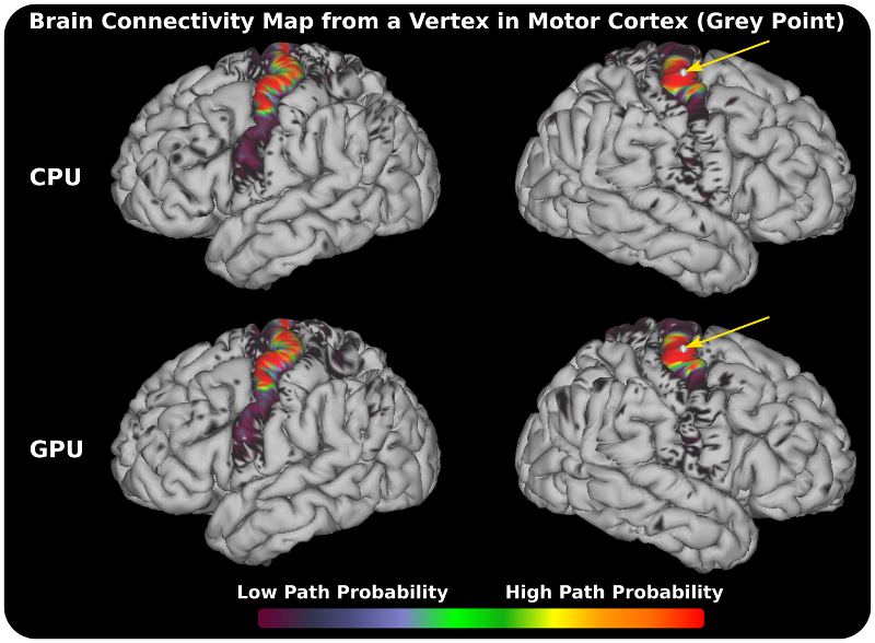 Path probability map from a vertex in the Motor Cortex. The map is extracted from a dense connectome matrix (path probabilities between grayordinates, when these are used as seeds) generated with the FSL's CPU tractography tool and our GPU tractography framework. Connectome Workbench tool (http://www.humanconnectome.org/software/connectome-workbench.html) was used for visualisation.