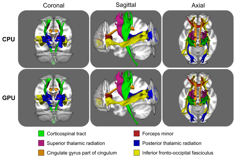 Coronal, sagittal and axial views comparing FSL's CPU tractography tool with GPU tractography framework reconstructing some major brain white matter tracts. These paths are binarised versions of the path distributions, after these have been thresholded at 0.5%.